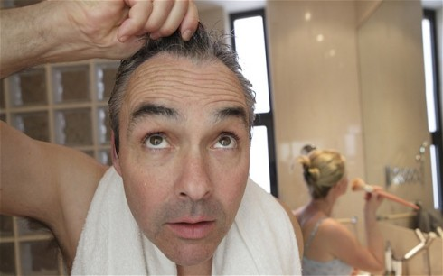 baldness_2174368b